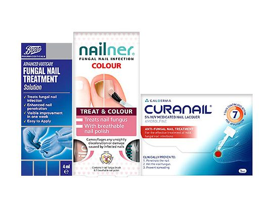 Fungal nail infection - Inspiration & advice - Boots