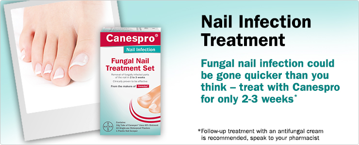 New Canespro Nail Infection Treatment